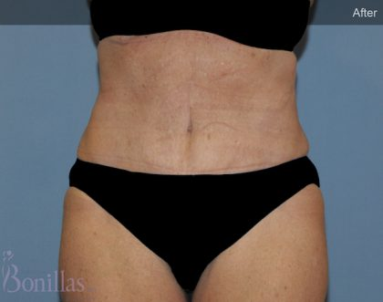Tummy Tuck Before & After Patient #11425