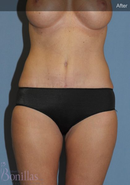 Tummy Tuck Before & After Patient #11432