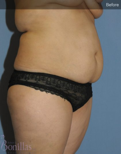 Tummy Tuck Before & After Patient #11439