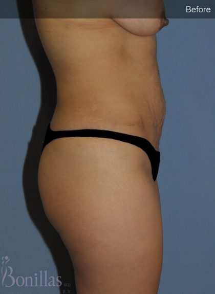 Tummy Tuck Before & After Patient #11446