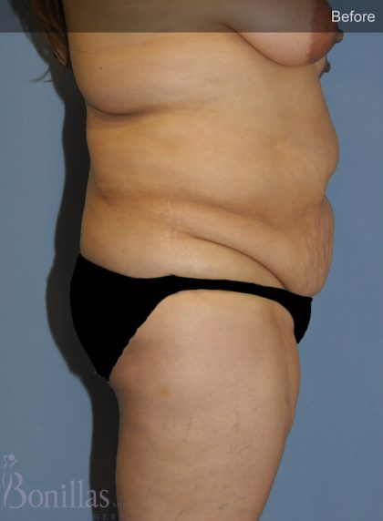 Tummy Tuck Before & After Patient #11453