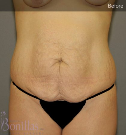 Tummy Tuck Before & After Patient #11460