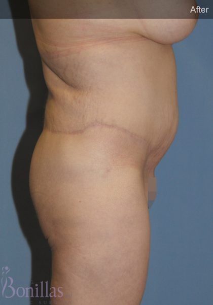 Body Lift Before & After Patient #11469