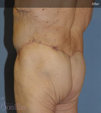 Body Lift Before & After Patient #11486