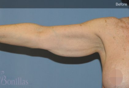 Arm Lift Before & After Patient #11524