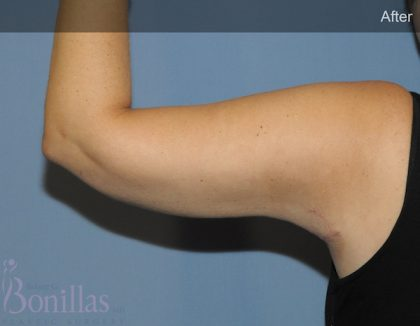 Arm Lift Before & After Patient #11541