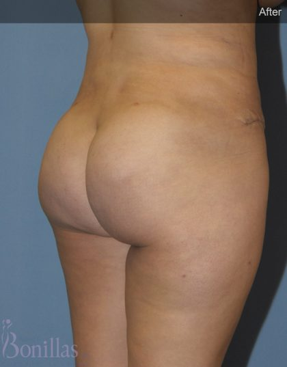 Butt Augmentation Before & After Patient #11503