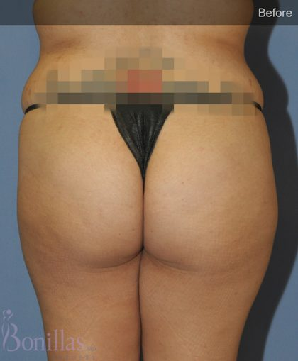 Butt Augmentation Before & After Patient #11510