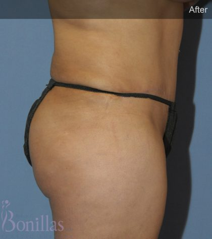 Butt Augmentation Before & After Patient #11517
