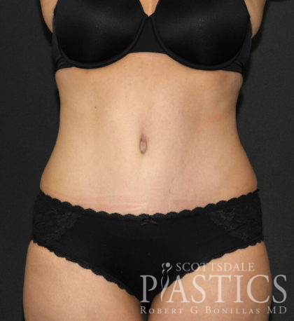 Tummy Tuck Before & After Patient #11893