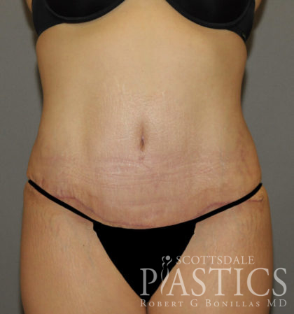 Tummy Tuck Before & After Patient #11900