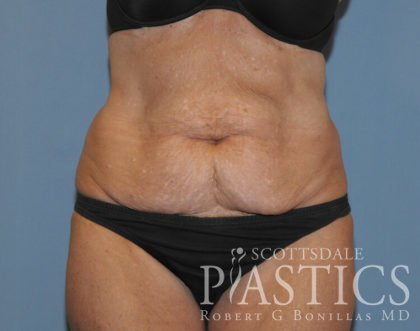 Tummy Tuck Before & After Patient #11907
