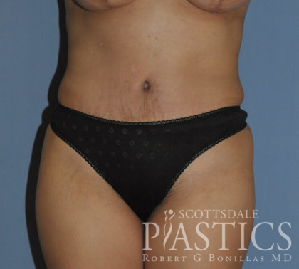 Tummy Tuck Before & After Patient #11914
