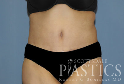 Tummy Tuck Before & After Patient #11922