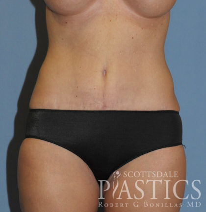 Tummy Tuck Before & After Patient #11929