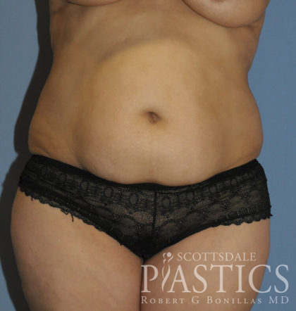 Tummy Tuck Before & After Patient #11936