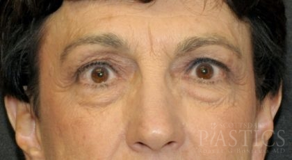 Blepharoplasty Before & After Patient #12387